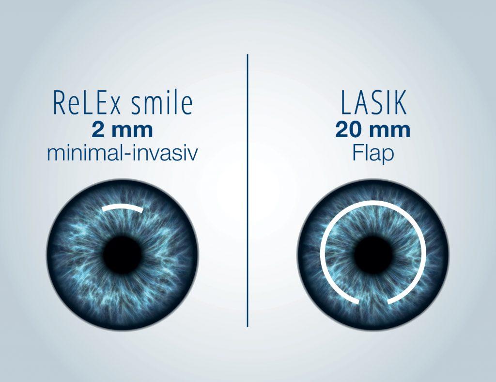 ReLEx_smile-LASIK_SCHNITT_Q_2016